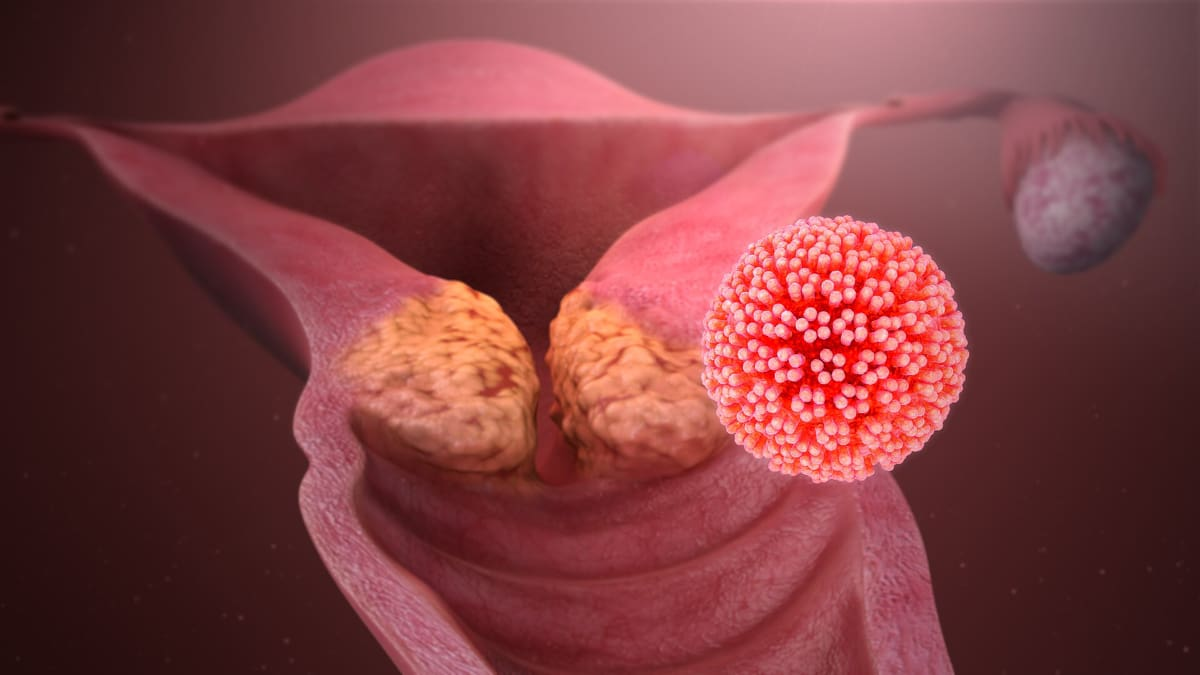 cervical cancer multiple sex partners in Orlando